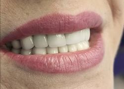 Протезирование зубов металлокерамическими коронками - всей полости рта