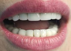 Протезирование всей полости рта металлокерамическими коронками