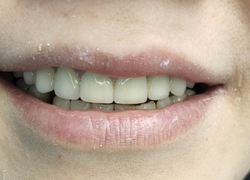 Полное протезирование верхней челюсти металлокерамическими коронками