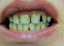 Прямая реставрация зубов пломбой: До