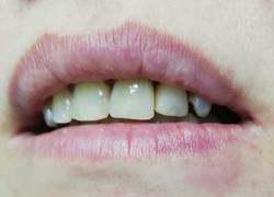 Прямая реставрация зубов пломбой: После